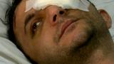 Васил остана без око след взрив на фойерверки