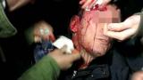Пореден пиянски погром в пловдивско заведение завърши с линейки и полиция