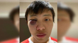 Студентът, пребит заради коронавируса, разказа за ужаса