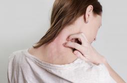 Какво е псориазис и как се лекува у нас